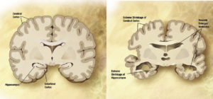 A healthy brain (left) and a brain in the advanced stages of Alzheimer's, with visible cell loss.