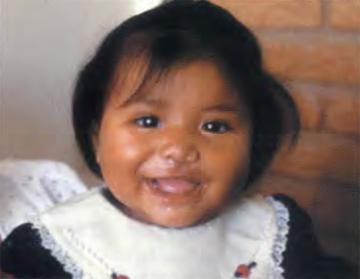 <em>Joselin Serrano Rodriguez after her surgery by Operation Smile doctors.</em>