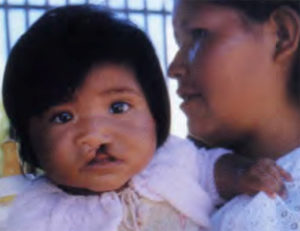 Joselin Serrano Rodriguez of Bolivia before her surgery by Operation Smile doctors.